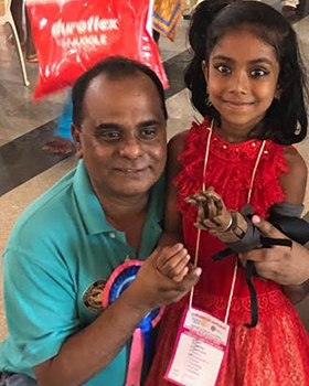 Kumar and prosthetic hand recipient